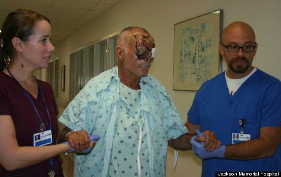 Hospital Picture of Miami Cannibal Attack Face Eating Victim Ronald Poppo Walking Around